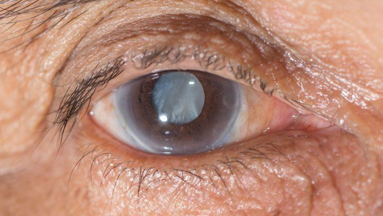 Prevenção Glaucoma
