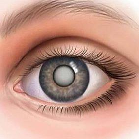 66a981af30d98 Arquivo de lentes de contato - Óticas Shalon